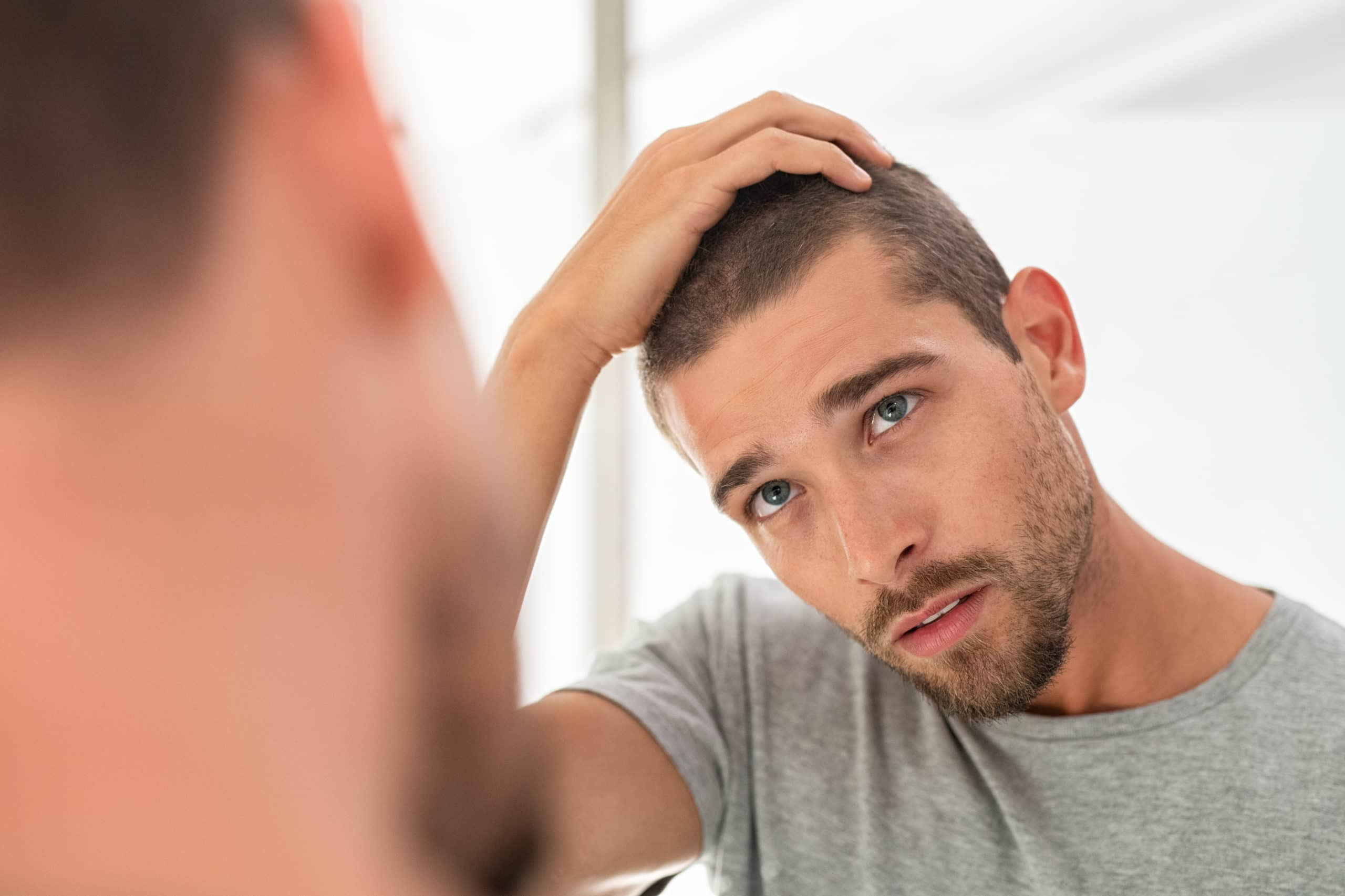 Hair Transplants for a Permanent Remedy to your Hair Loss